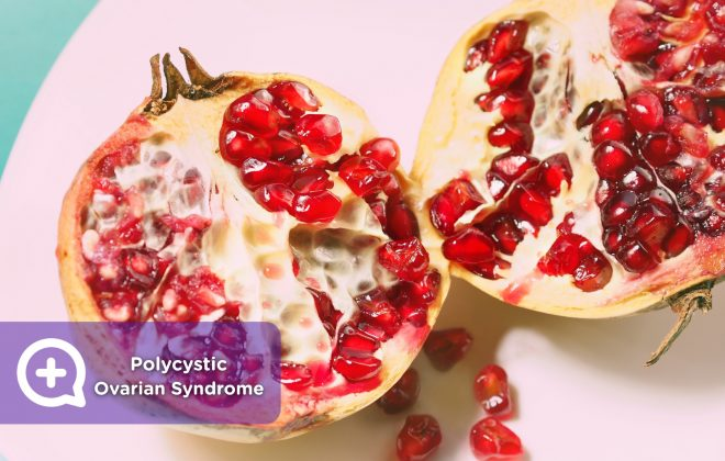 Polycystic ovarian syndrome, women, irregular menstruation, cysts, ovaries, polycystic,