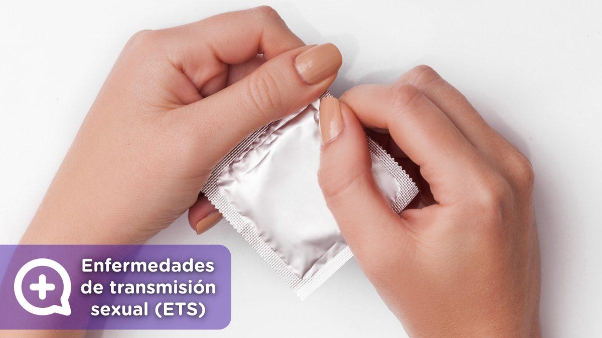 Las ETS son infecciones generadas por bacterias, virus, parásitos y hongos, que se contagian de una persona a otra durante el acto sexual, ya bien sea por sexo vaginal, anal u oral