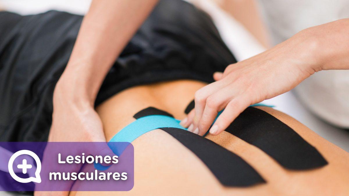 Lesión muscular, por práctica de ejercicios, aplicándose kinesio taping.