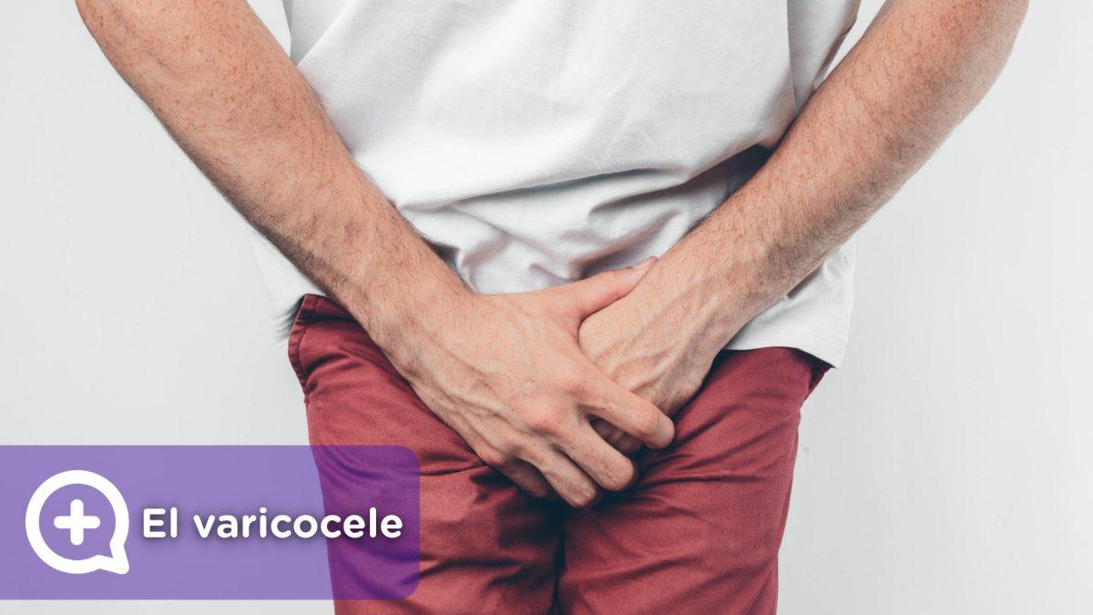 el varicocele Es un cordón espermático que hay alrededor de los testículos, compuesto de arterias, venas y nervios, que transporta sangre a los testículos, así como el semen hasta el conducto deferente.