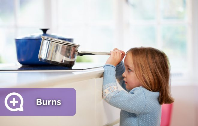 Minor burns in children and adults due to household accidents in the kitchen