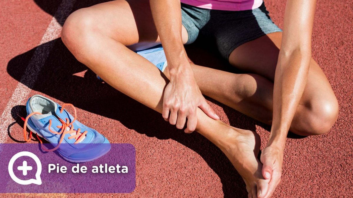 Mujer deportista con pie de atleta, afección en los pies, hongos