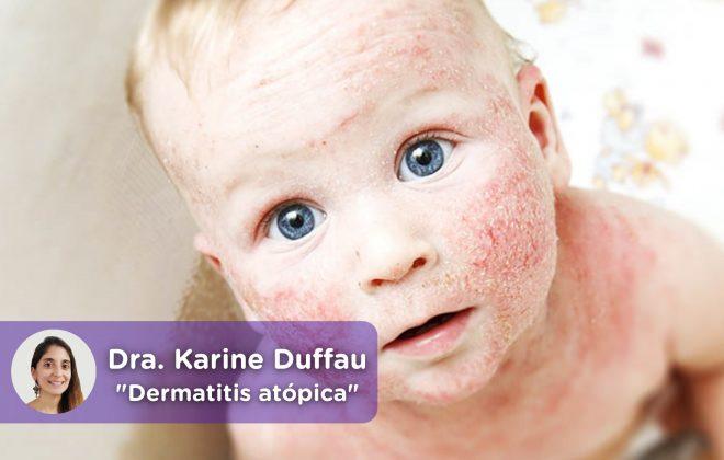 Dermatitis atópica infantil. MediQuo, tu amigo médico. Chat médico.
