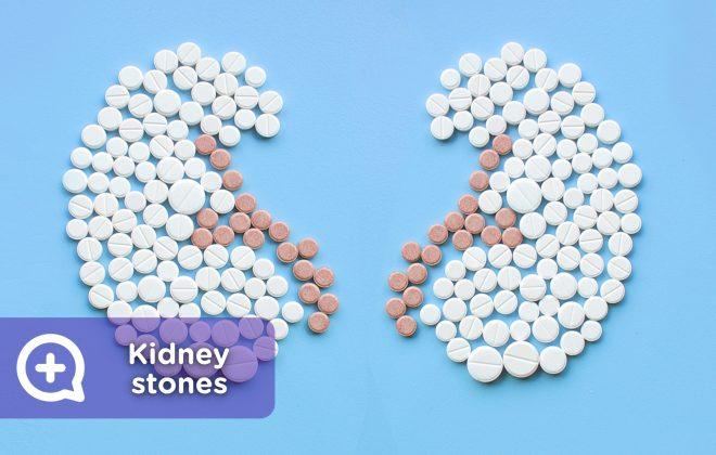kidney stones, lithotripsy, kidney stones.