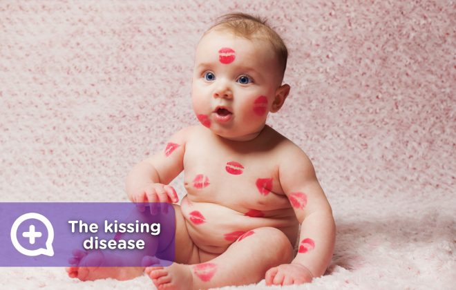 Mononucleosis or kissing disease. Infection from contact with saliva.