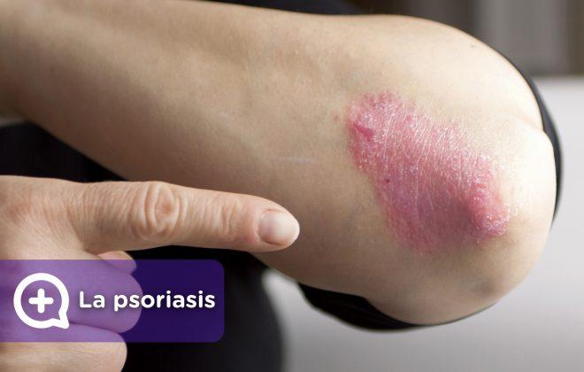 La psoriasis, tratamiento, como curarla. MediQuo, tu amigo médico. chat médico.
