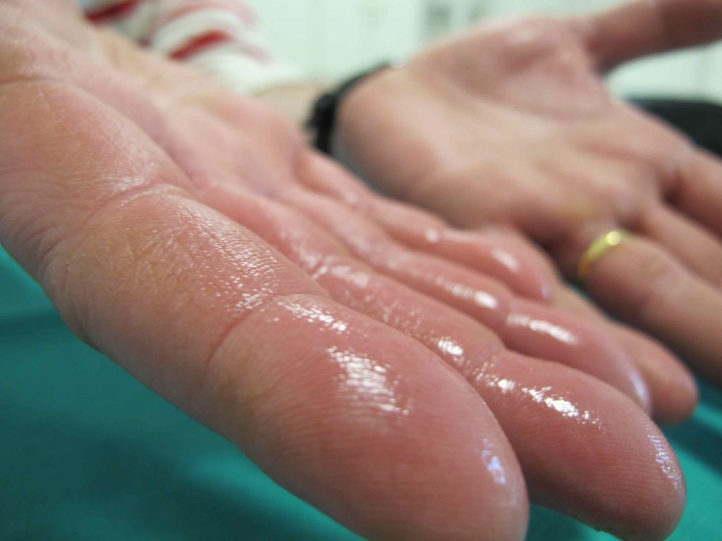 Hiperhidrosis, sudoración en manos, axilas, ingles. Glándulas sudoríparas. mediQuo, tu amigo médico. Chat médico.