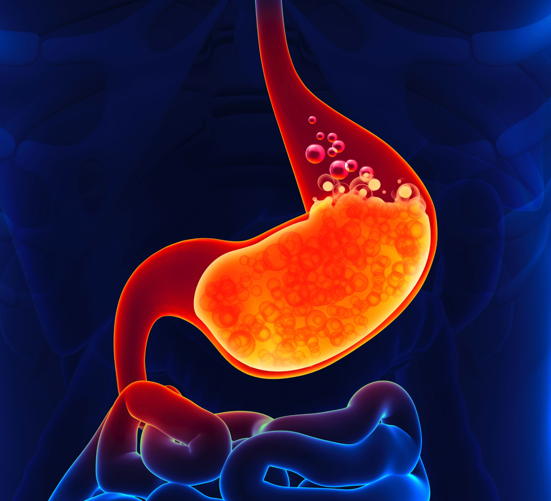 acidez, Dolor de estómago, dolor abdominal, Protector estómago, omeoprazol. Mediquo, tu amigo médico, chat médico.