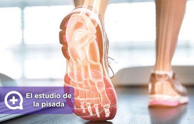 Estudio de la pisada, dolor de espalda, pies. Deporte. MediQuo, Tu amigo médico. Chat médico.