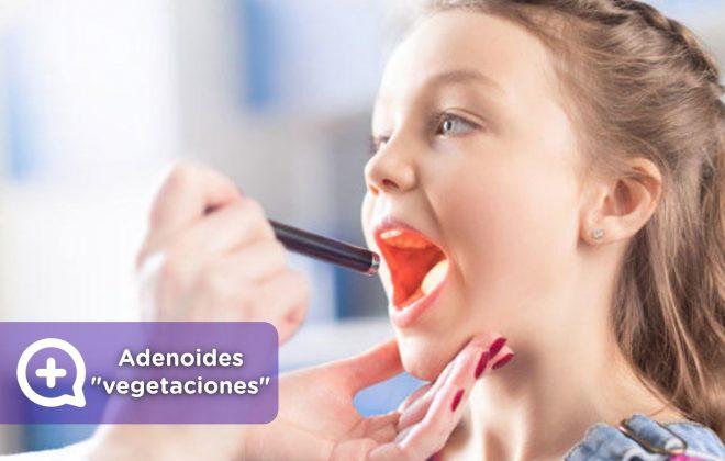 Adenoides, vegetaciones o carnots. Niños, pediatría. MediQuo. Tu amigo médico. Chat médico.