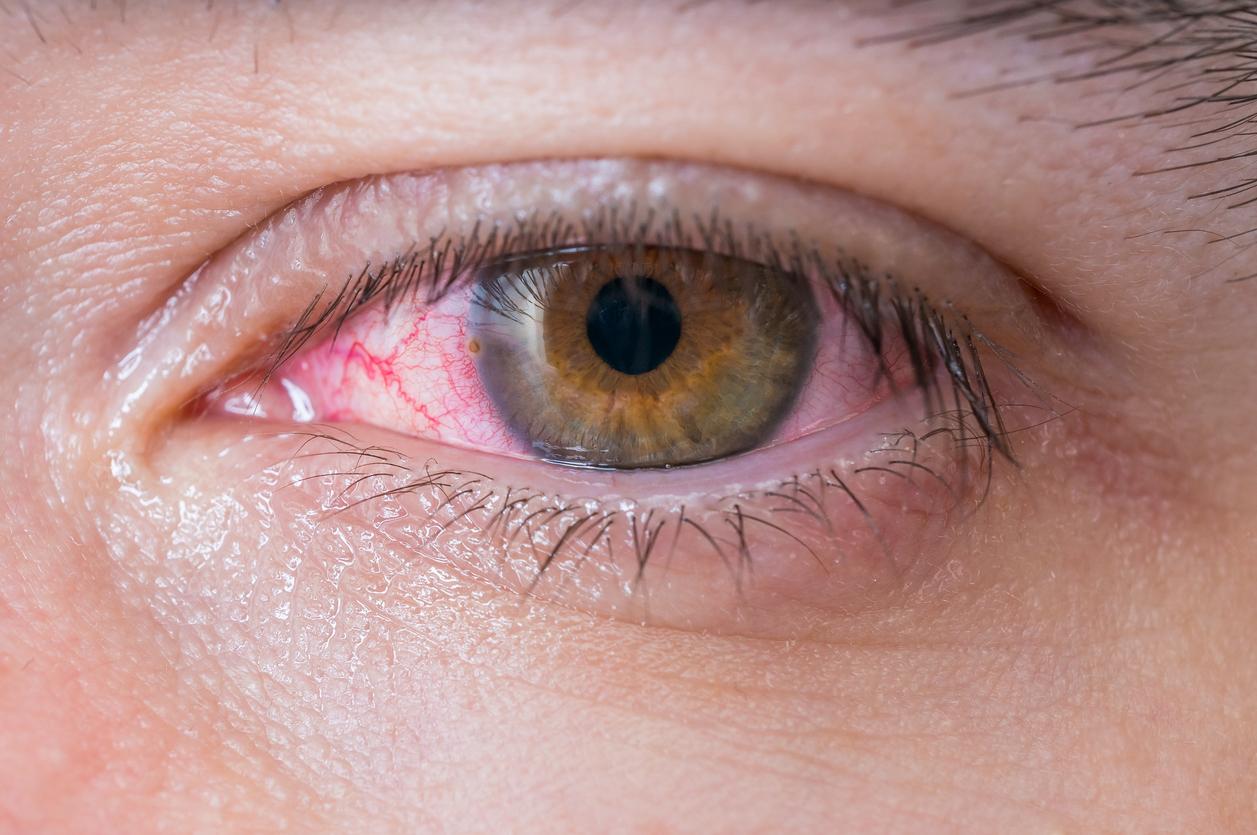Lentes de contacto, lentillas, ojos, problemas oculares, conjuntivitis. Mediquo. Tu amigo médico. Chat médico.