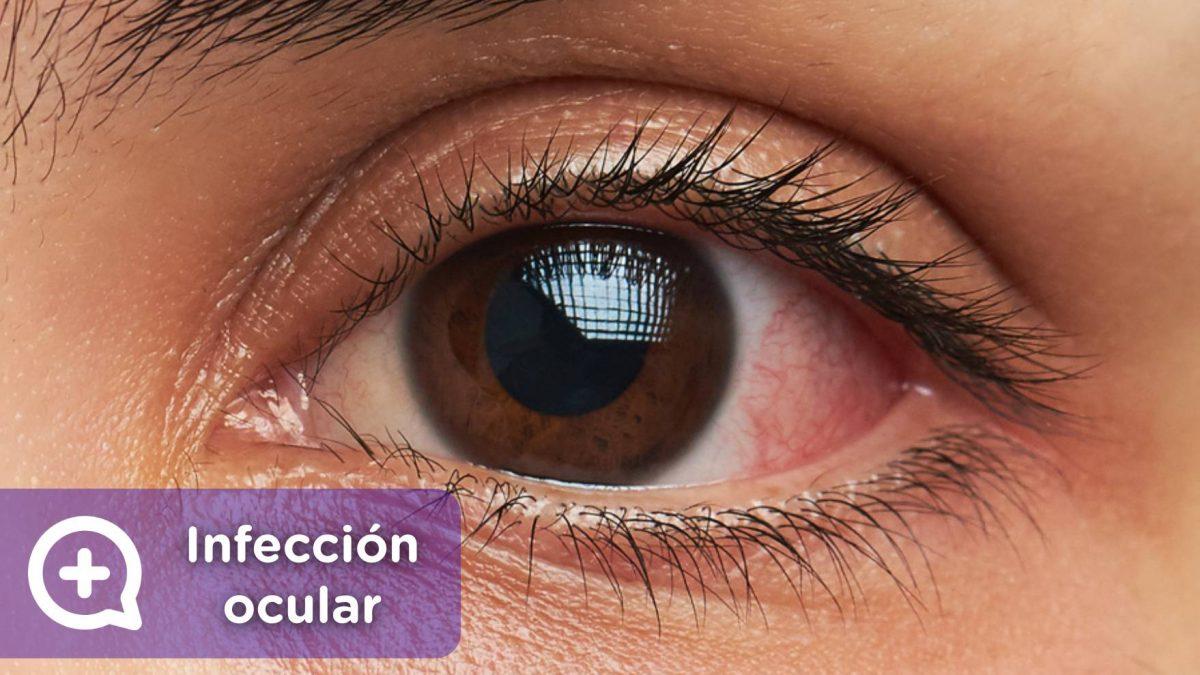 qué médico para la infección ocular