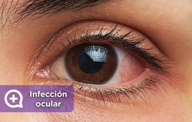 Infección ocular. Lentes de contacto, lentillas, ojos, problemas oculares, conjuntivitis. Mediquo. Tu amigo médico. Chat médico.