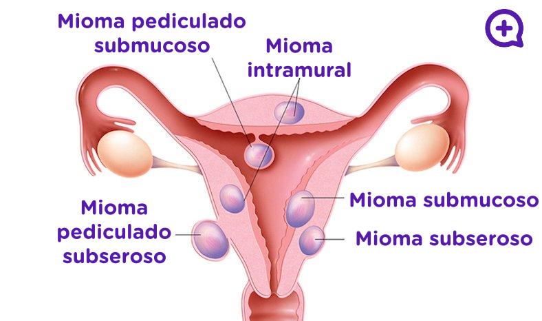 Mioma pediculado, submucoso, subseroso, intramural. Miomas uterinos, benigno. Útero. Ginecología. Mediquo, Tu amigo médico.
