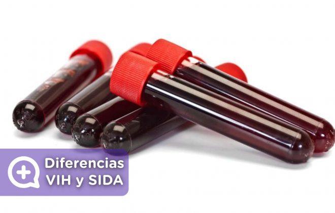Diferencias entre el VIH y el SIDA. Virus de la inmunodeficiencia humana. Mediquo, tu amigo médico. Chat médico.