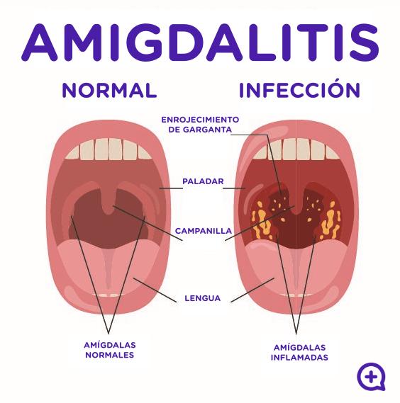 Amigdalitis, infección, virus, inflamación amigdalas. Mediquo, Tu amigo médico. Chat médico.