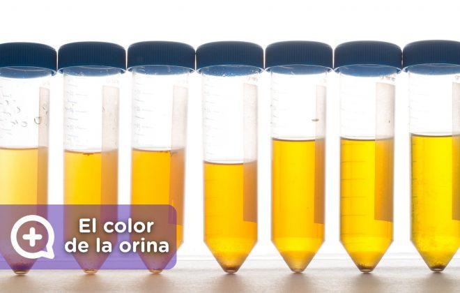 Los colores de la orina y su significado. Salud. Mediquo, Tu amigo médico. Chat médico.