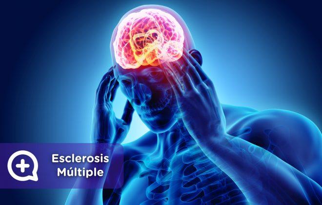 Esclerosis Múltiple, como afecta a la vida. MediQuo, tu amigo médico. Chat médico.
