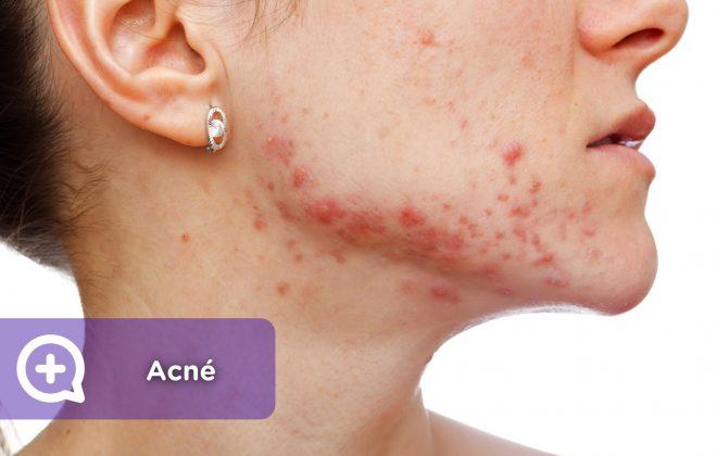 acné, espinillas, granos, hormonas, higiene facial, salud, mediquo, tu amigo médico. Chat médico.