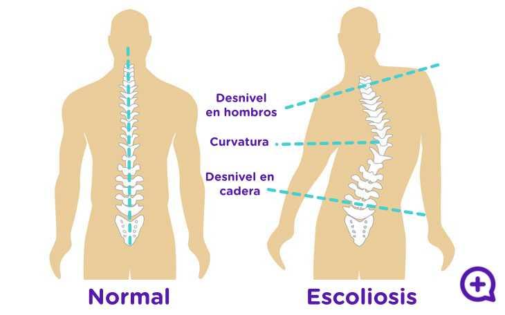 Escoliosis, dolor de espalda, S. Dolor cervical. columna vertebral. Mediquo, tu amigo médico. Chat médico.