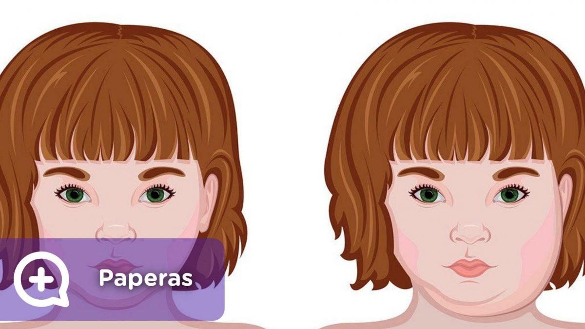 Sintomas de paperas en adolescentes