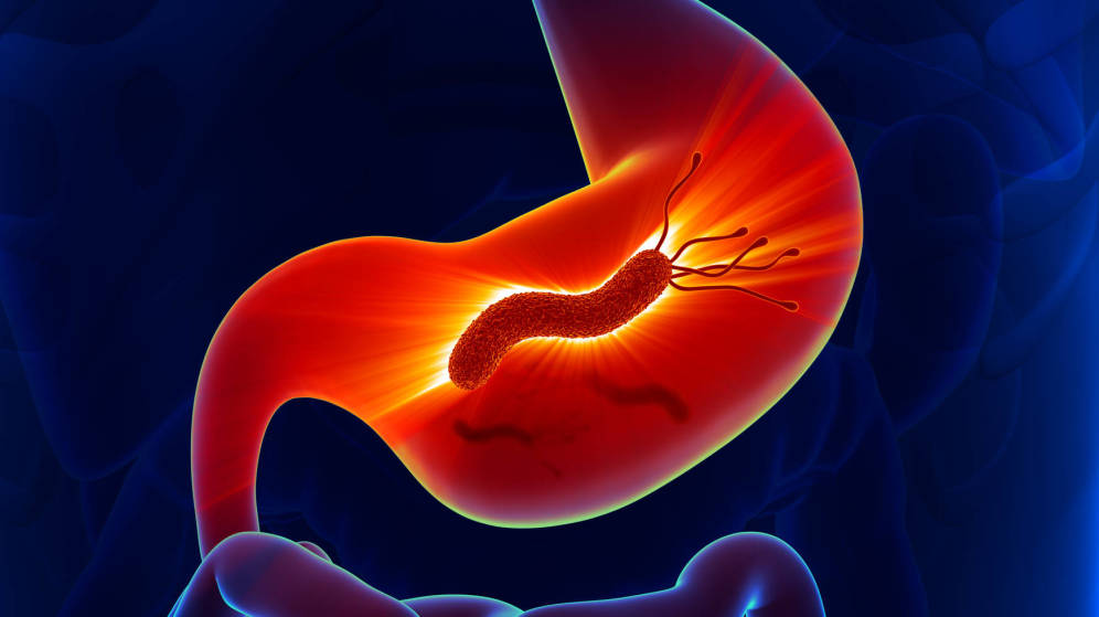 mediquo helicobacter. gastritis, dolor de estómago, aparato digestivo. salud. mediquo, tu amigo médico. chat médico.