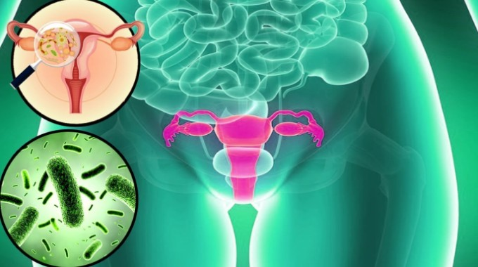 vaginosis bacteriana, infección. salud mujer, ginecología. mediquo, tu amigo médico. Chat médico.