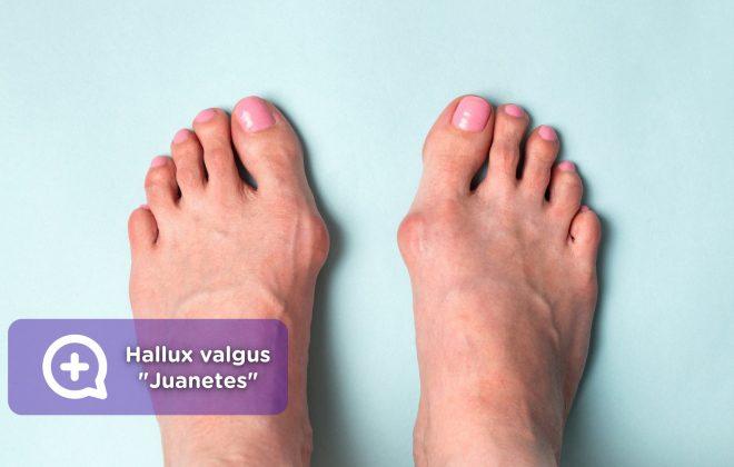 Hallux valgus, juanetes, deformidad, pies, dolor. Mediquo, tu amigo médico. Chat médico.