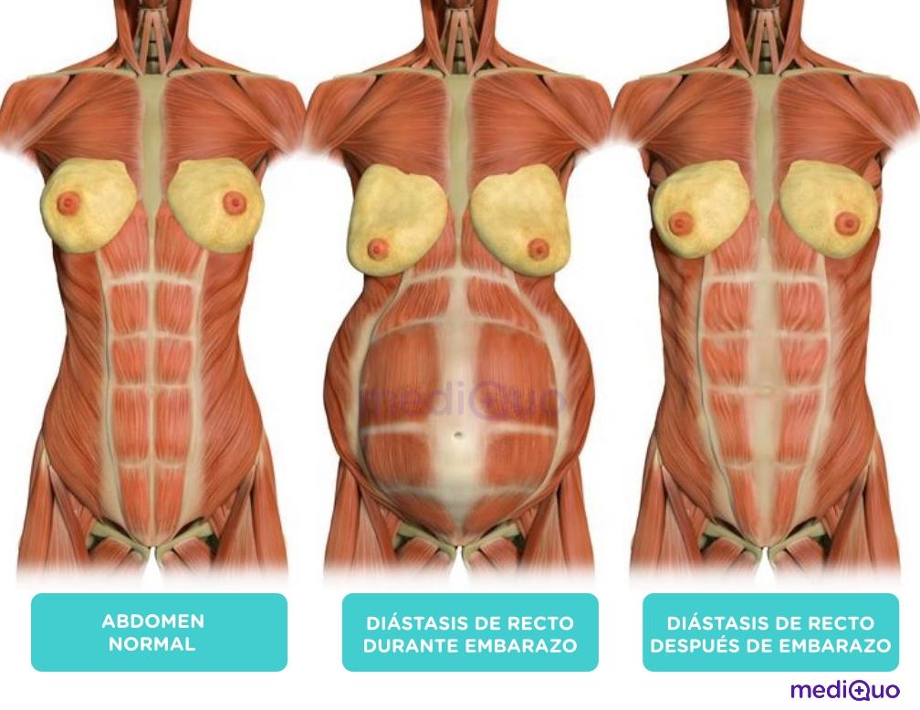 Diastasis abdominal. Embarazo, Vientre, abdominales. Mujer. Mediquo, Tu amigo médico. Chat médico.