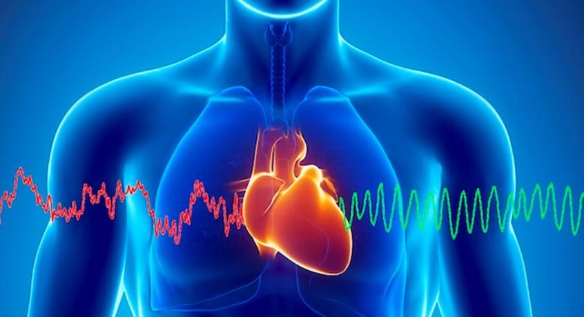 Arritmia cardiaca. Electrocardiograma. Mediquo. Tu amigo médico. Chat médico.