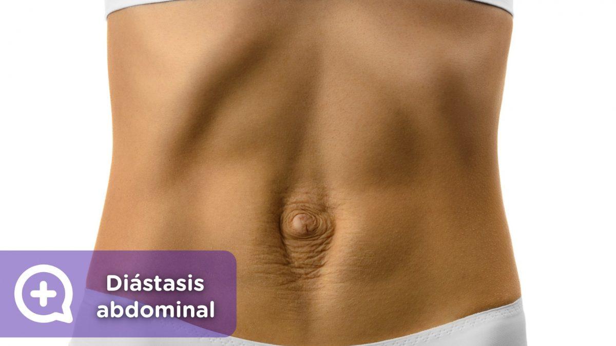Diástasis abdominal. Embarazo, Vientre, abdominales. Mujer. Mediquo, Tu amigo médico. Chat médico.