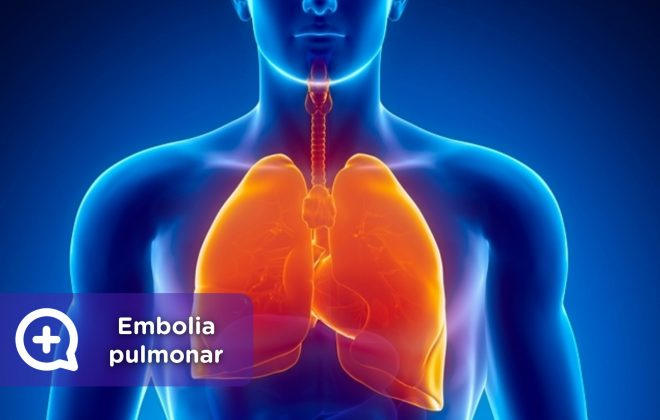 Embolia pulmonar, TVP, coágulo de sangre. Mediquo, Tu amigo médico. Chat médico.