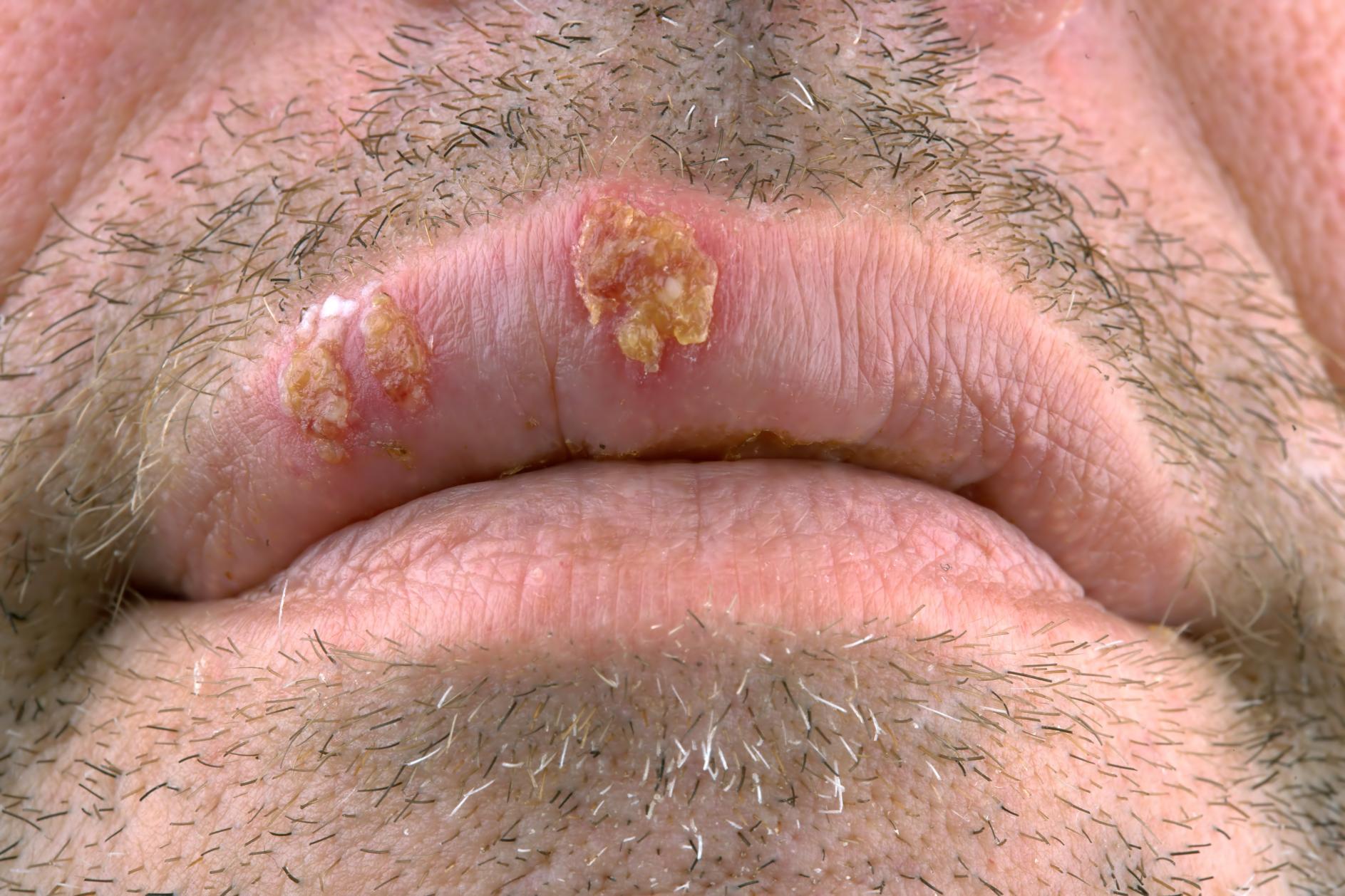 herpes labial, virus, contagio, labio, vhs,. Mediquo, tu amigo médico. Chat médico.