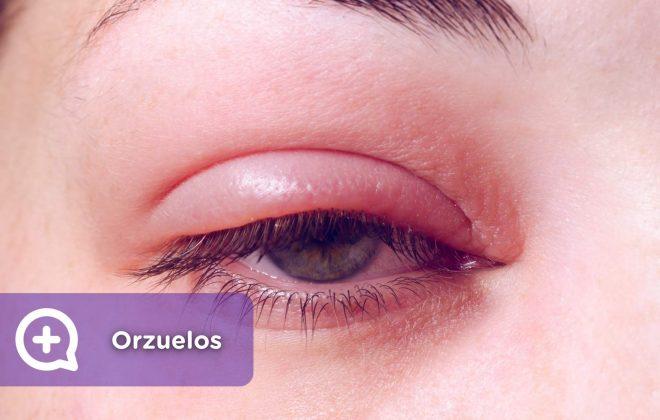 orzuelos, infección ojos, ocular, bacterias, virus. Mediquo, tu amigo médico. Chat médico.