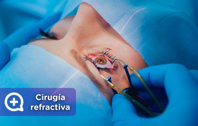 Cirugía refractiva, miopía, astigmatismo, hipermetropía, presbicia, mediquo, tu amigo médico. Chat médico.