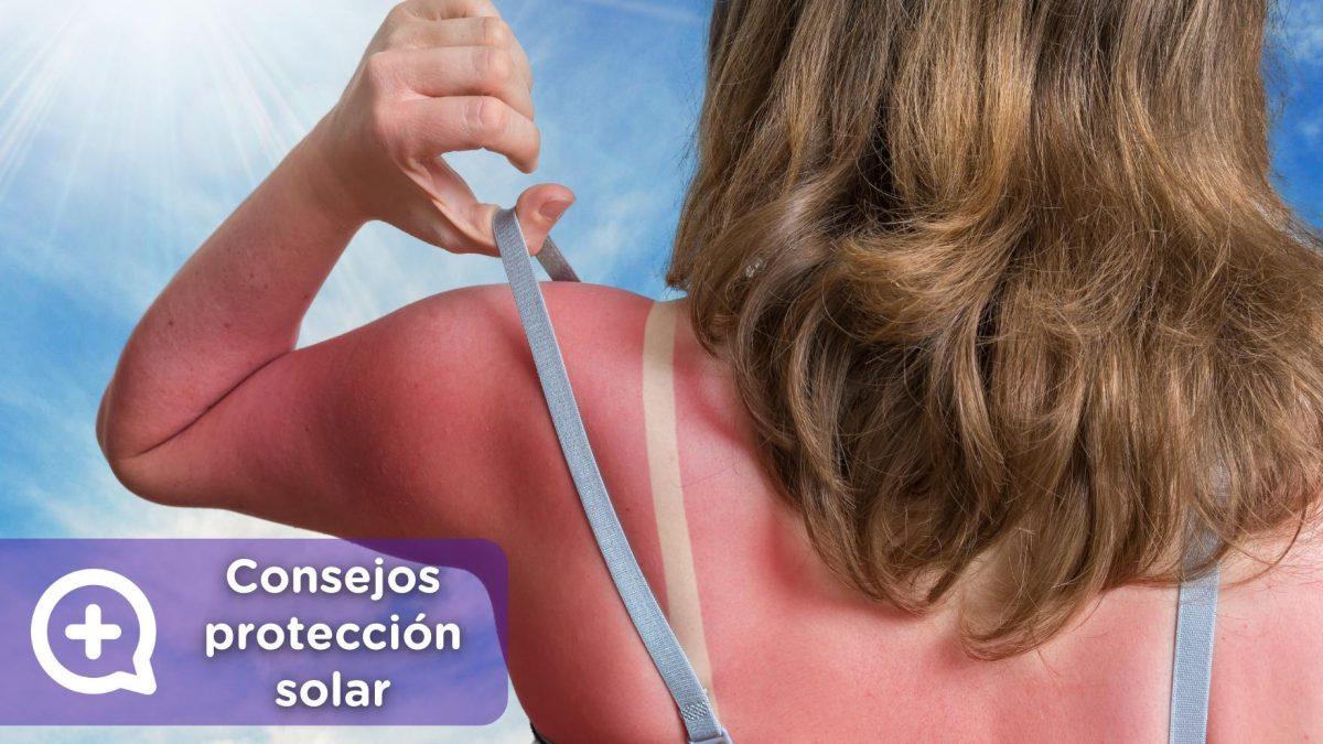 protección solar, consejos, vitamina D. Mediquo, Tu amigo médico. Chat médico.
