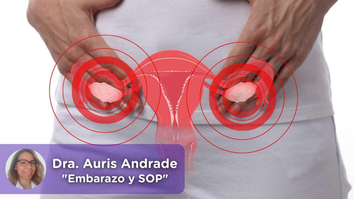Embarazo y síndrome de ovario poliquístico. Mediquo, Tu amigo médico.