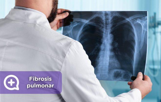 Fibrosis pulmonar, mediquo, Tu amigo médico. Radiografia, respiración. Salud.