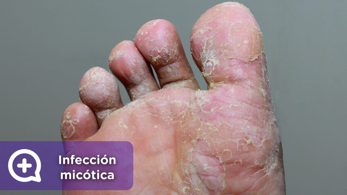 Causas de hongos en los pies