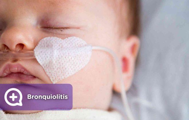 Bronquiolitis, virus, infección, vías respiratorias, pediatría, médicos, mediquo. Salud