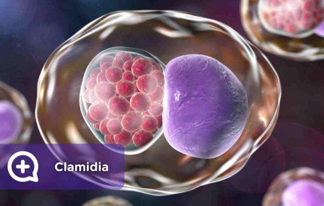 Clamidia, enfermedad de transmisión sexual. ETS. Mediquo. Bacteria. Infección. Salud.