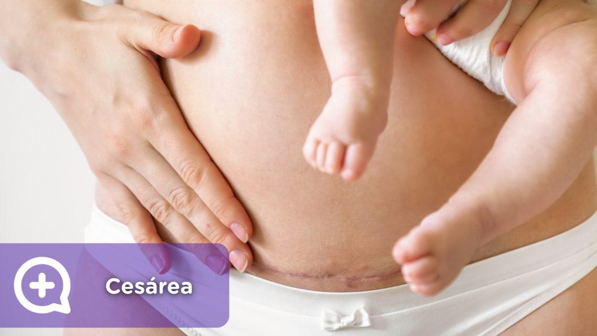 cesárea, embarazo, ginecología, salud, mujer, loquios, parto, epidural, mediquo