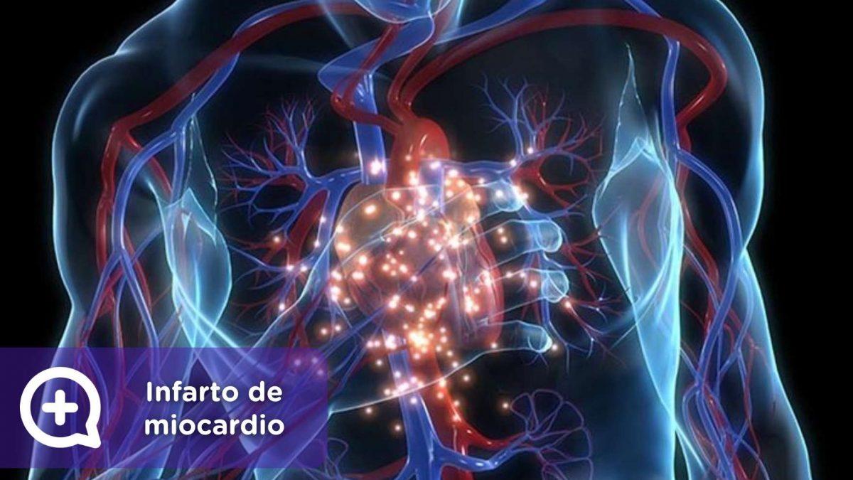 infarto de miocardio, salud, mediquo, angina de pecho, corazón, telemedicina, app, chat medico.