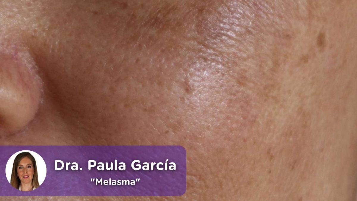 Melasma, mancha solar, piel, pigmentación, mujer, protección solar, exposición solar, rayos, cáncer de piel, mediQuo, Paula García Amorós