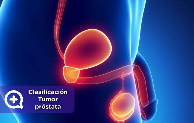 Tumor próstata, salud masculina, hombres, cáncer, testículos, urología, aparato reproductor másculino. Mediquo, consulta online.