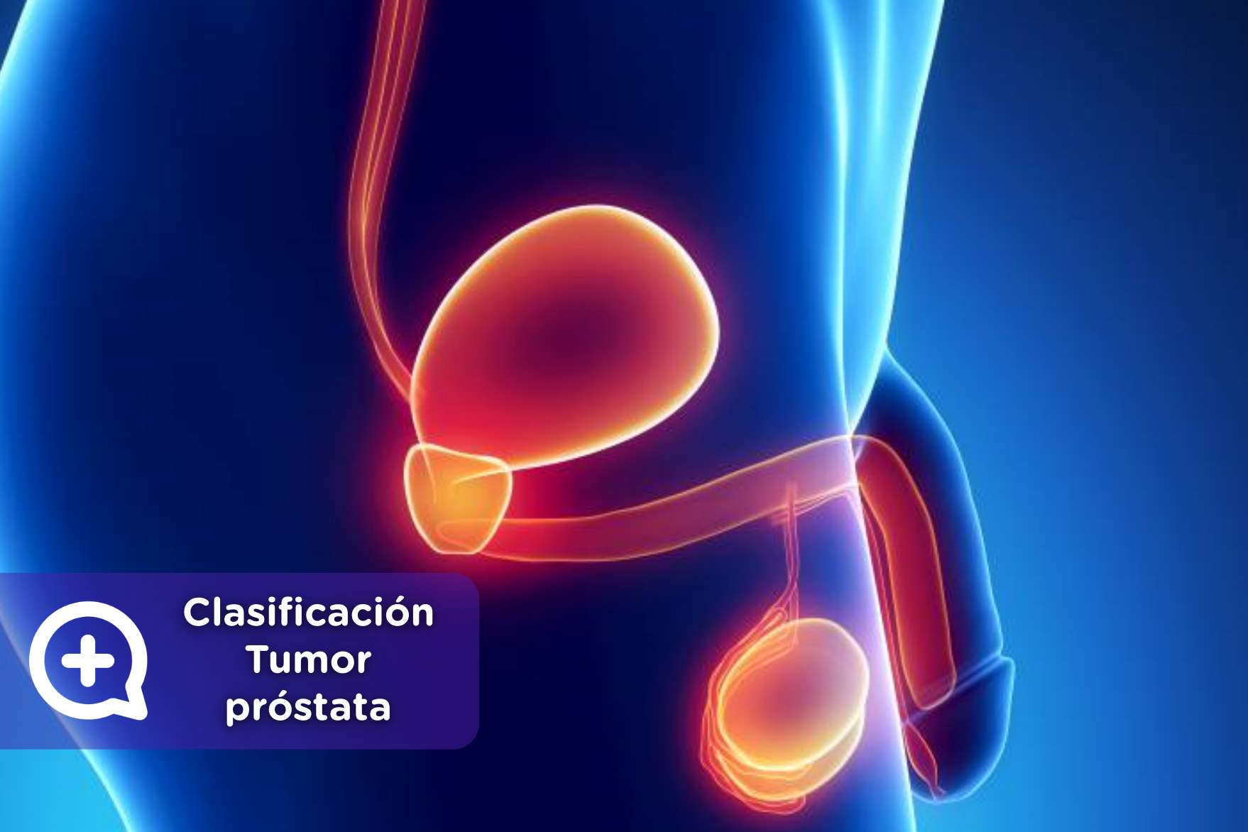 Conheça os 5 tipos de câncer de próstata   Ativo Saúde