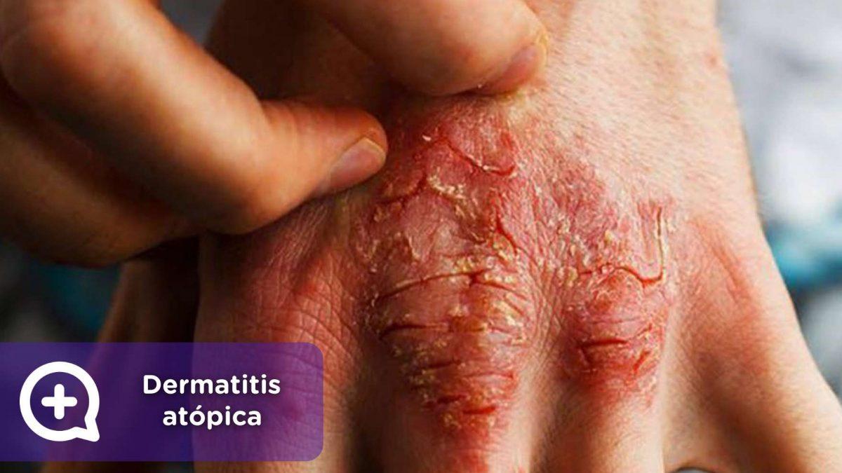 Enfermedad, dermatitis atópica, reocmendaciones, consejos, médicos, dermatología, dermatólogos. MediQuo, chat médico. Telemedicina.